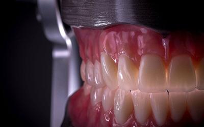 Нейлоновый протез Acry-Free, нейлоновый протез Акрифри в стоматологии Smart Dental Clinics