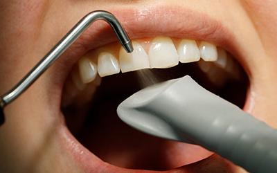 Чистка зубов Airflow в стоматологии Smart Dental Clinics