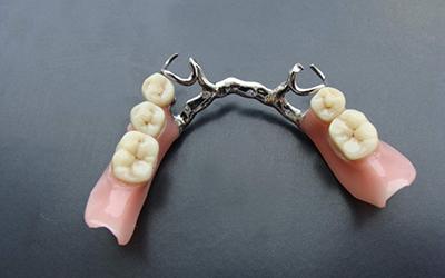Бюгельный протез на кламмерах в стоматологии Smart Dental Clinics