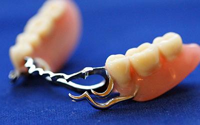 Частично съемный протез в стоматологии Smart Dental Clinics