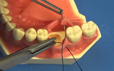 Установка дренажа в стоматологии Smart Dental Clinics