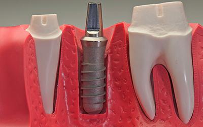 Штифто-культевая вкладка в стоматологии Smart Dental Clinics
