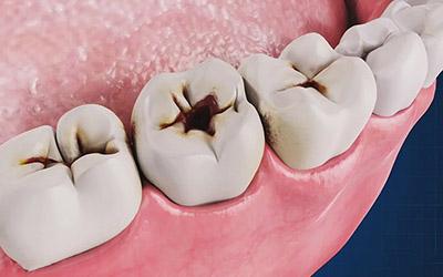 Лечение кариеса в стоматологии Smart Dental Clinics