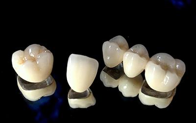 Металлокерамические коронки в стоматологии Smart Dental Clinics