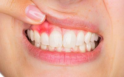 Лечение периостита в стоматологии Smart Dental Clinics