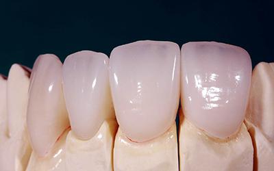 Прессованные керамические коронки Imax в стоматологии Smart Dental Clinics
