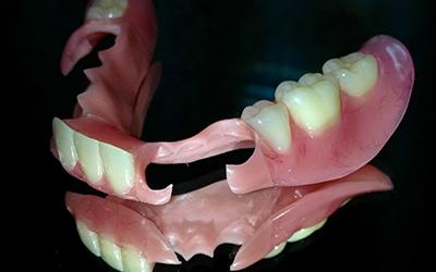 Съемный протез QuattroTi, съемный протез Квадротти в стоматологии Smart Dental Clinics