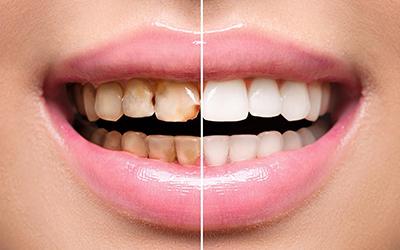 Эстетическая реставрация зубов в стоматологии Smart Dental Clinics