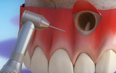 Резекция верхушки корня зуба в стоматологии Smart Dental Clinics