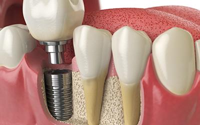 Установка импланта в стоматологии Smart Dental Clinics