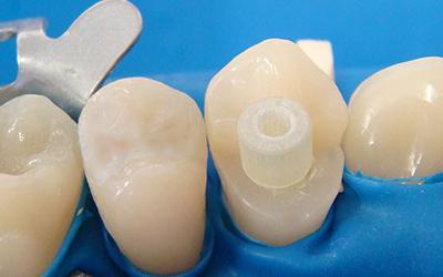 Установка стекловолоконного штифта в стоматологии Smart Dental Clinics