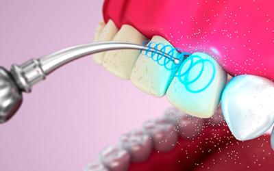 Чистка зубов ультразвуком в стоматологии Smart Dental Clinics